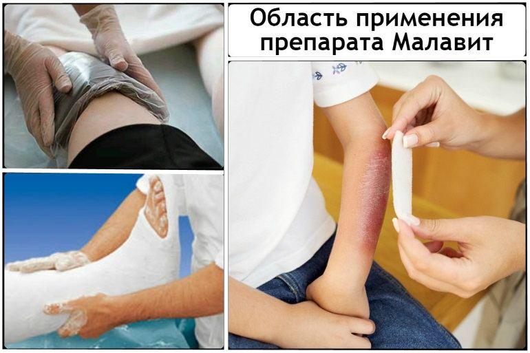 Особенности применения гель-крема Малавит