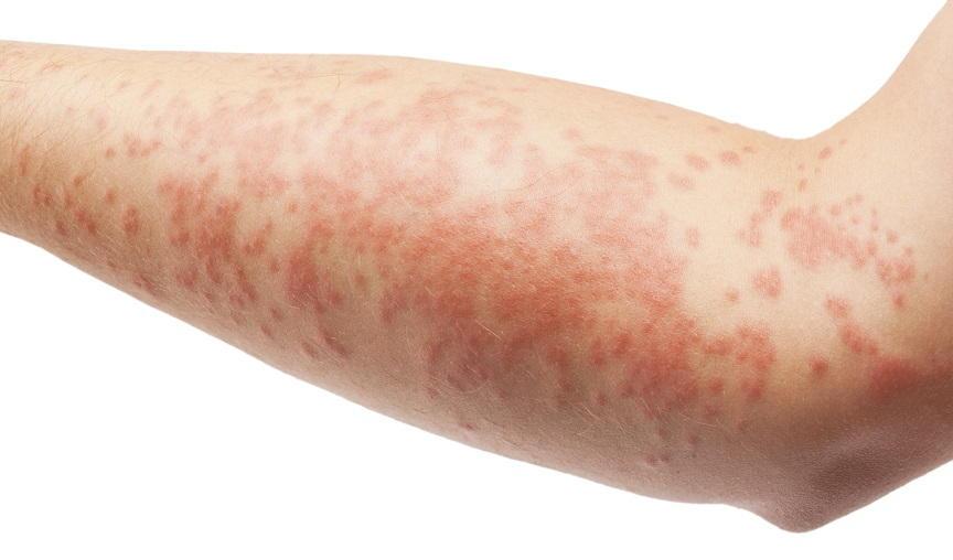 Кожный зуд и сыпь - побочное действие лекарственного средства