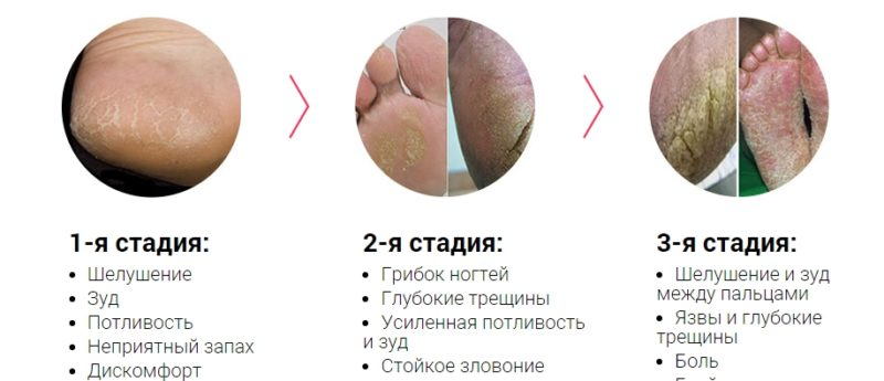 Показание к применению - дерматомикозы