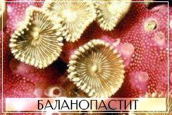 Пимафуцин помогает справиться с баланопаститом