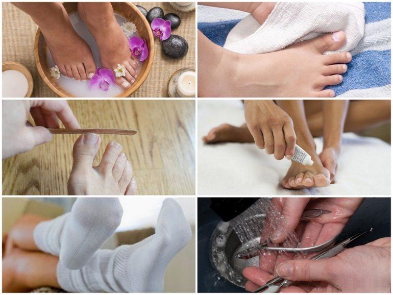 Как правильно использовать серную мазь от грибка ногтей