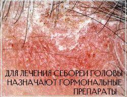 При себорейном дерматите головы показана комплексная терапия