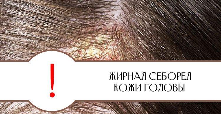 Жирная себорея кожи головы