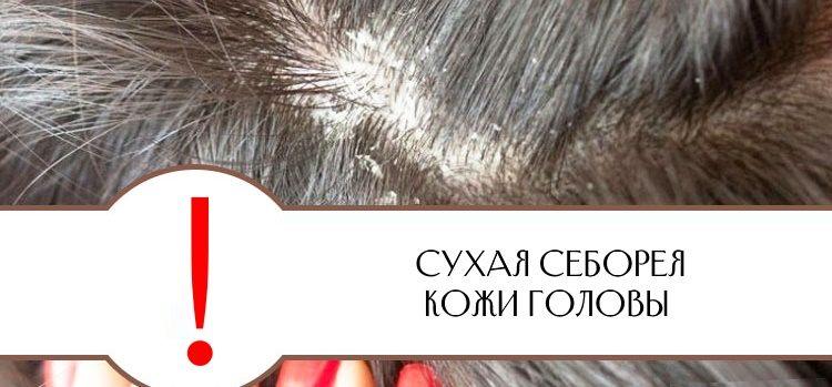 Для лечения сухой себореи применяют серную мазь