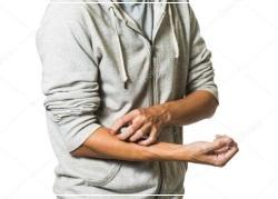 Зуд, жжение, аллергическая сыпь - побочные эффекты от серной мази