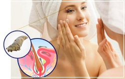 Демодекоз возникает вследствие влияния ряда внутренних и внешних факторов