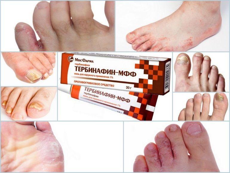 Мазь Тербинафин применяют в дозировках назначенных лечащим врачом