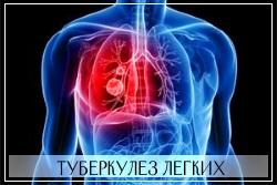 Мазь Випратокс противопоказана при туберкулезе легких
