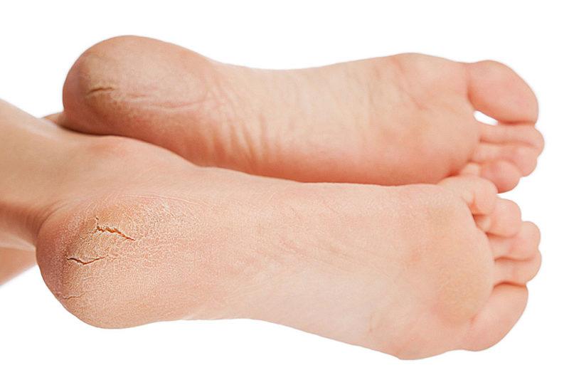 Препарат используют для лечения трещин на пятках
