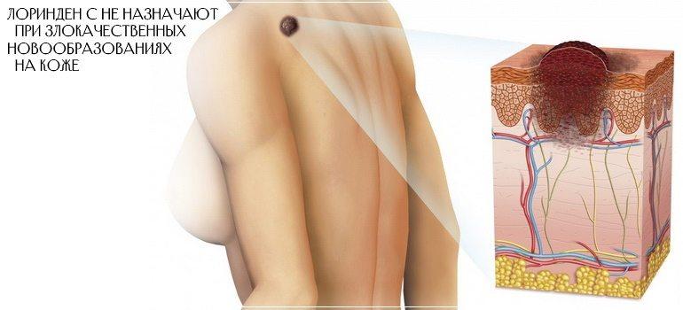 Лоринден С не назначают при злокачественных новообразованиях кожи