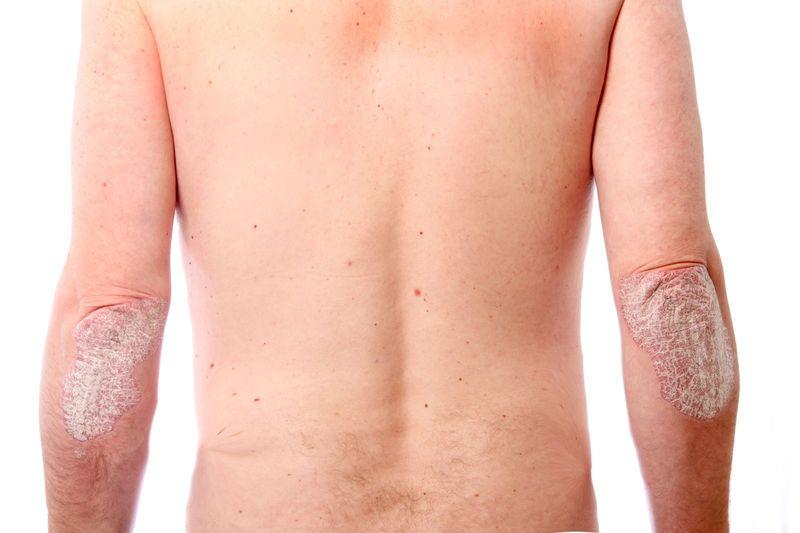 Препарат применяется в терапии псориаза