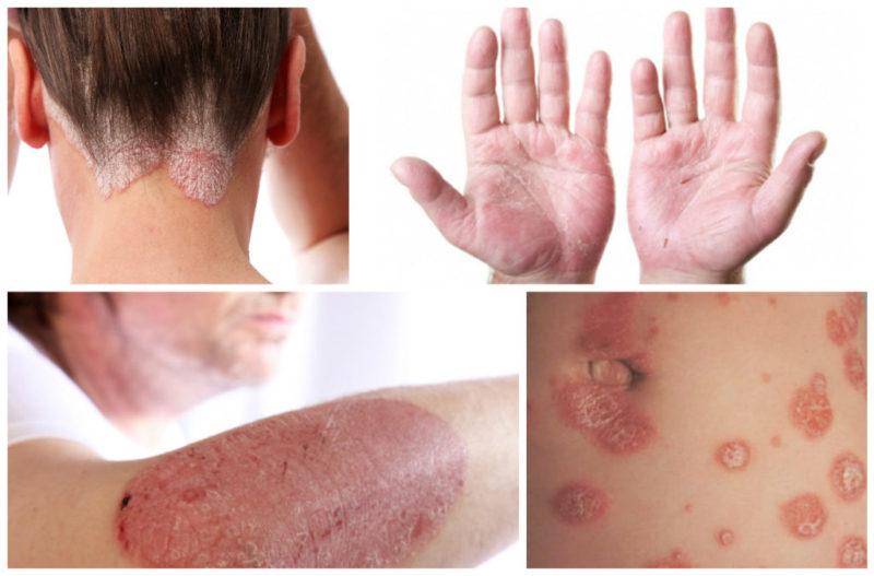 Препарат используют для лечения заболеваний кожи