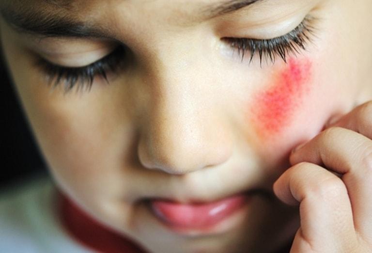 Препарат снижает болевой синдром и способствует заживлению кожи