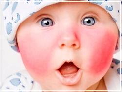 Бепантен назначают при диатезе у новорожденных