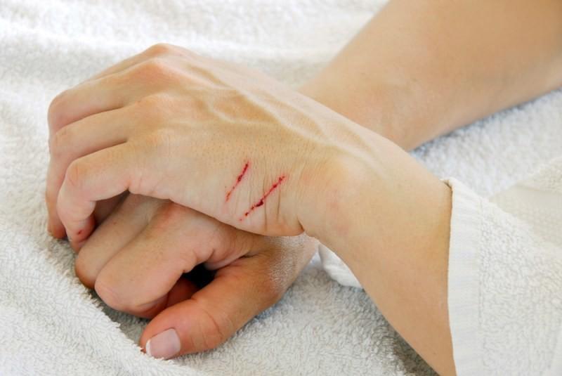 Мазь используют для лечения повреждений кожи