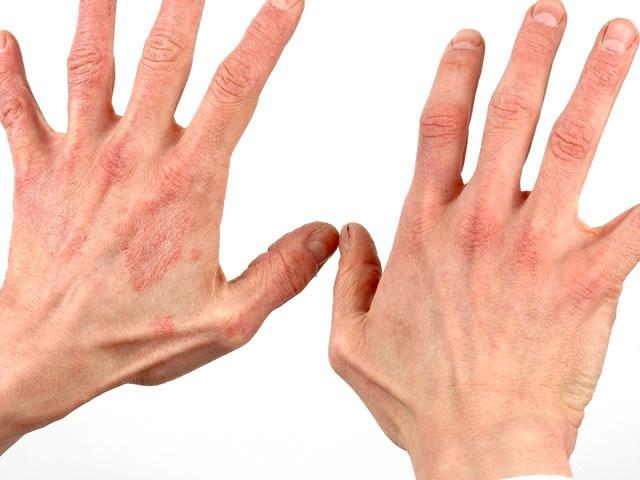 Показание к применению - дерматиты