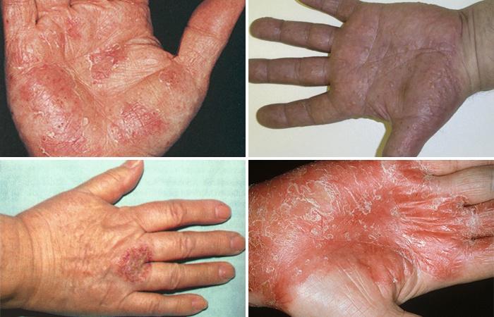 Препарат применяется в терапии кожных заболеваний