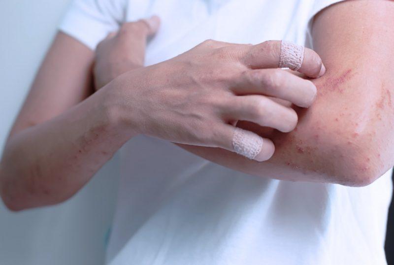 Зуд и высыпания - побочное действие препарата