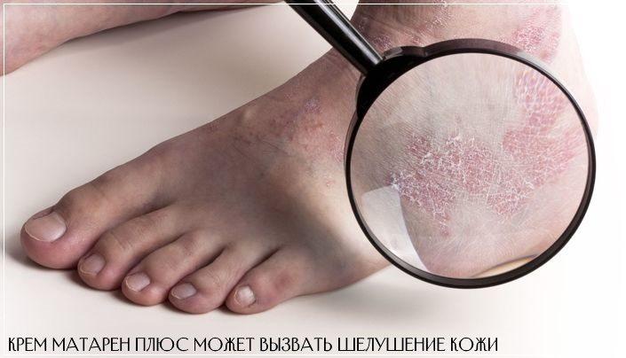 Матарен Плюс может спровоцировать шелушение кожи