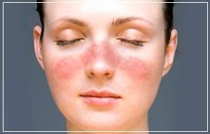 Контрактубекс может вызвать локальное воспаление, жжение и зуд