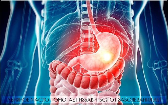 Льняное масло назначают при воспалении кишечника, запорах и геморрое