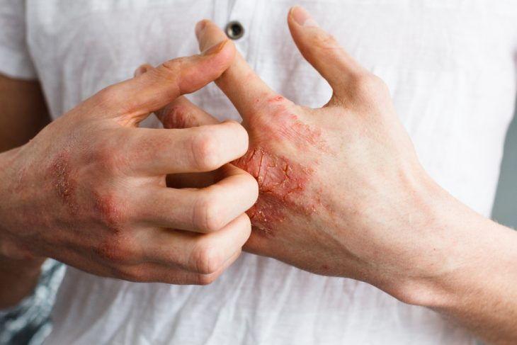 Препарат используют для лечения инфекционно-воспалительных болезней кожи