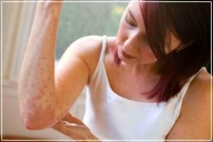 Тыквенное масло может спровоцировать аллергическую реакцию