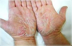 Мазь Випросал может вызвать шелушение кожи, зуд