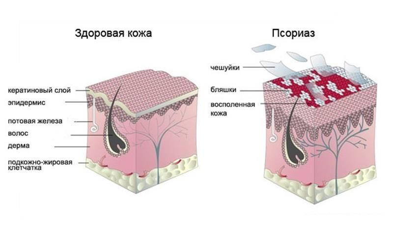 Показание к применению - псориаз