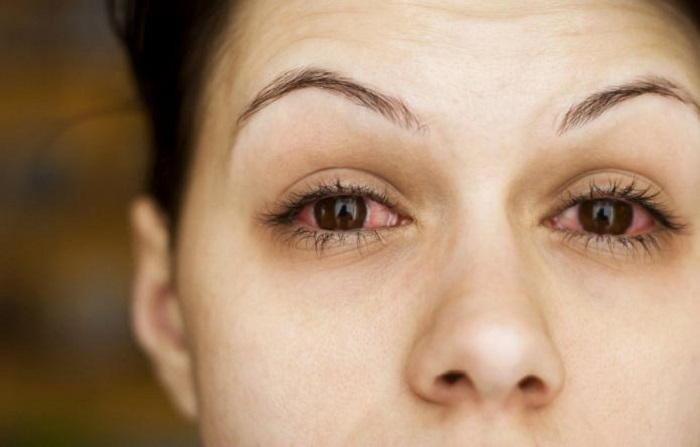 Покраснение глаз и слезоточивость - побочный эффект лекарства