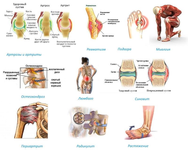 Показание к применению - болезни суставов