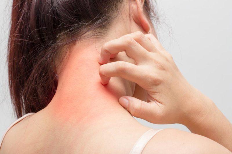 Кожный зуд и сыпь - побочный эффект препарата