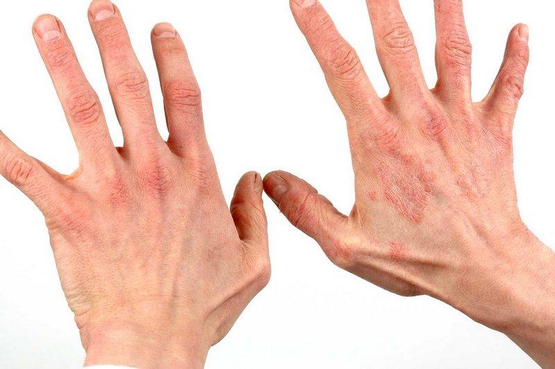 Показание к применению - дерматит