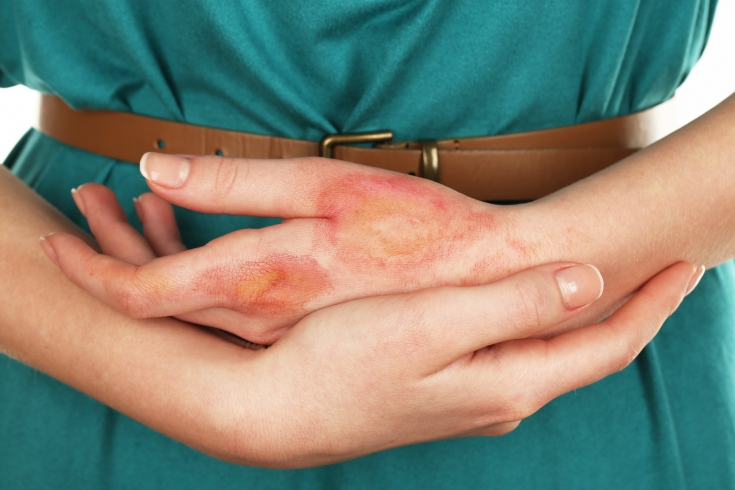Препарат используют в терапии болезней кожи