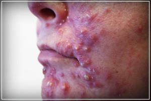Для эффективного избавления от дерматологических воспалений применяют мазь Афлодерм
