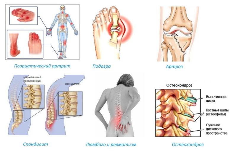 Мазь применяют в терапии патологий опорно-двигательной системы