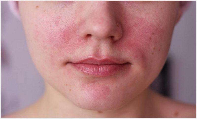 Покраснение и зуд - аллергическая реакция на препарат