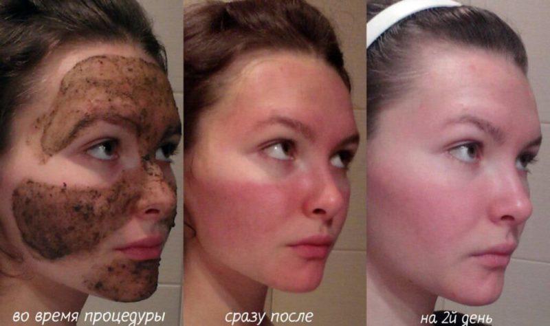 Препарат наносят на кожные покровы