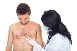 Препарат применяют после консультации врача