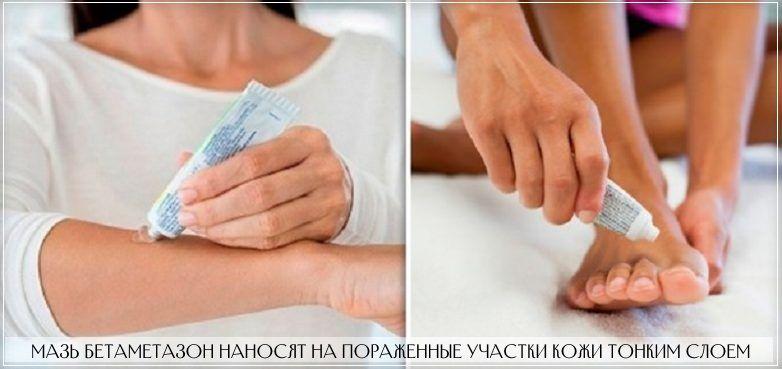 Мазь Бетаметазон наносят на кожу тонким слоем