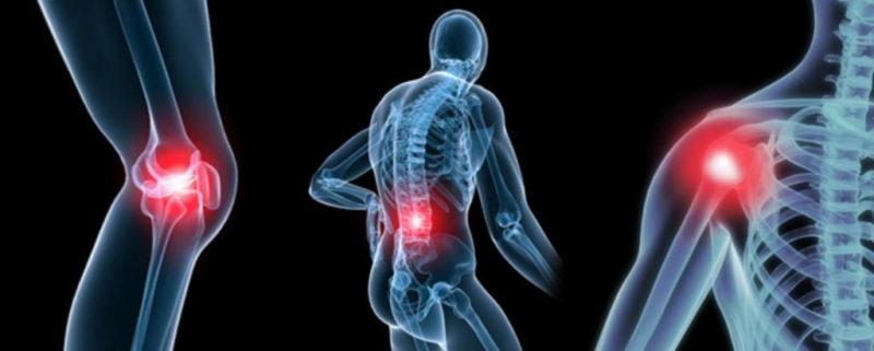 Препарат применяют в терапии болезней опорно-двигательного аппарата