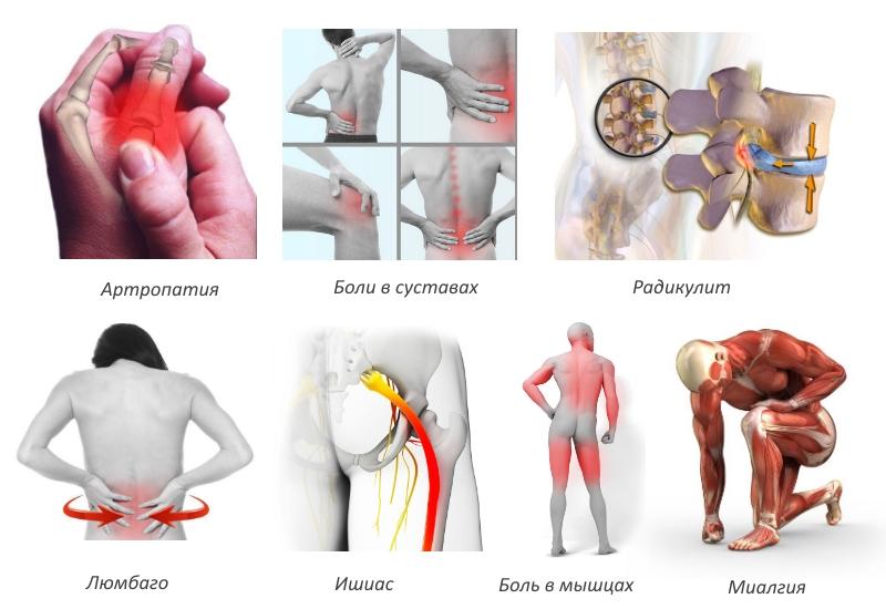 Препарат используют в терапии болезней суставов