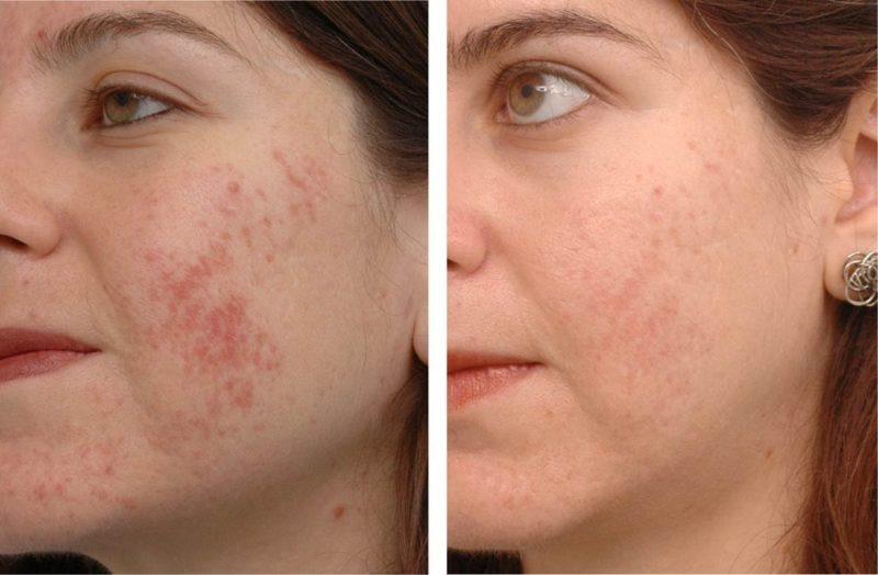 Мазь способствует ускоренной регенерации кожи