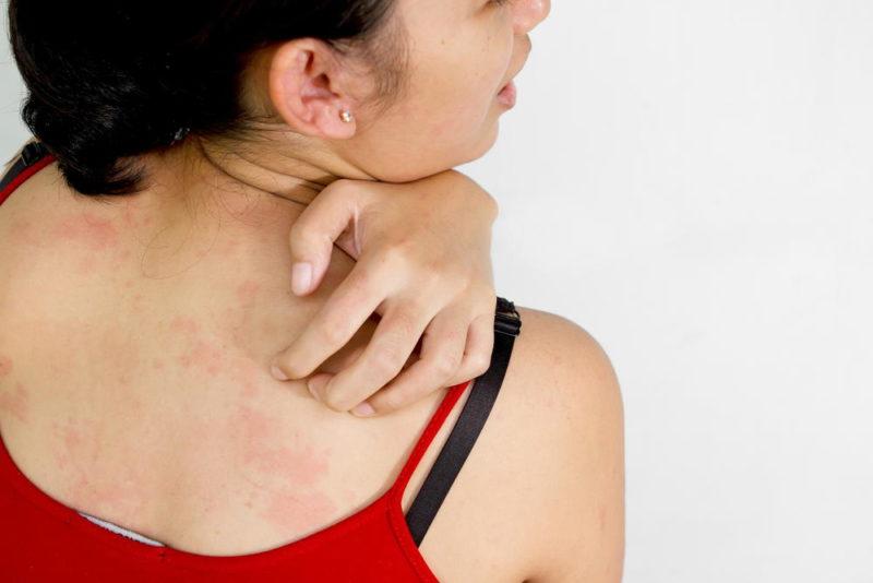 Аллергическая сыпь - побочное действие препарата