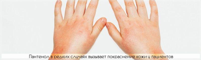 Пантенол может спровоцировать локальное покраснение кожи