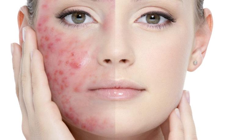 Лекарство применяют для лечения кожных заболеваний