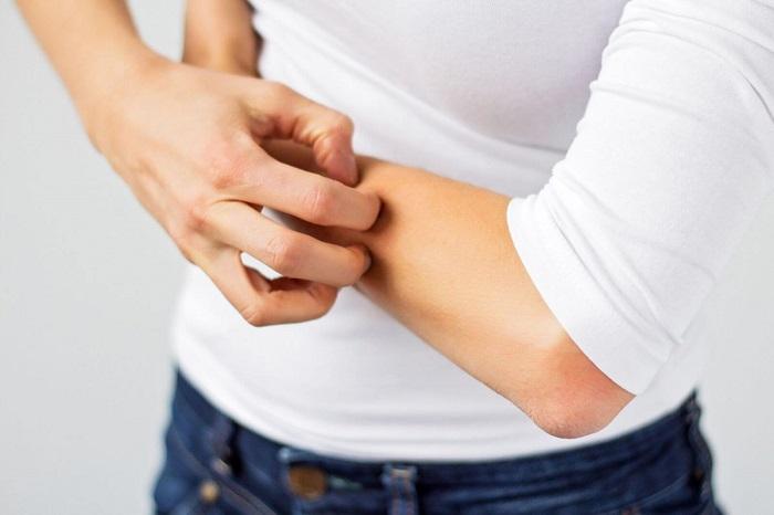 Зуд и сыпь - побочное действие лекарства