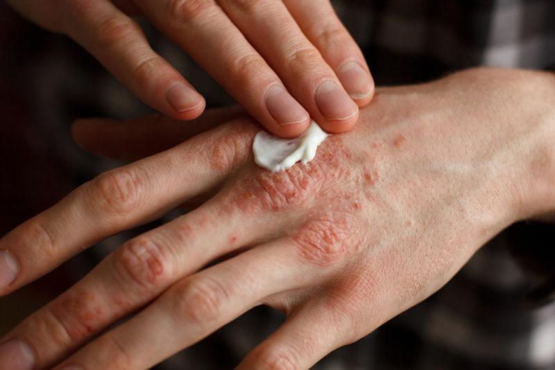 Препарат наносят на очаги воспаления