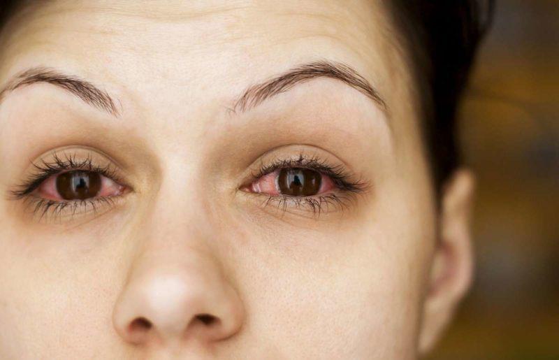 Препарат применяют при сухости глаз