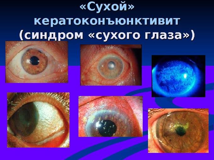 Показание к применению - «сухой» кератоконъюнктивит